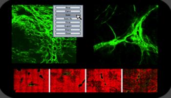 Multiphoton Imaging